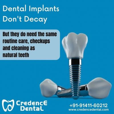 Credence Dental Clinic –  Bangalore BEML Layout 3rd Stg, RR Nagar